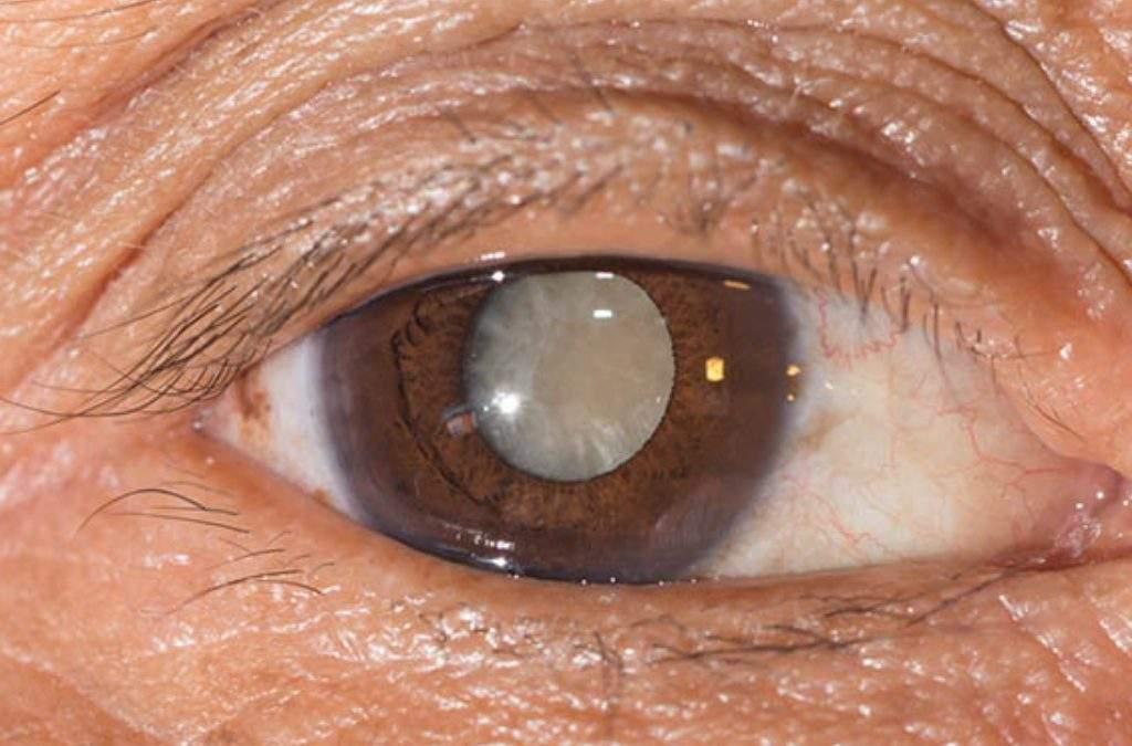 Catarata: O que é, Sintomas, Causas e Tratamentos